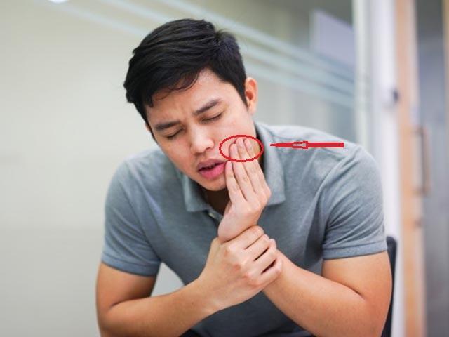 10 dấu hiệu trên mặt có thể chứng tỏ tim đang có vấn đề