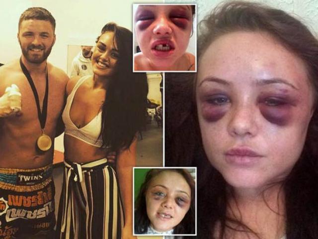 Võ sư điển trai tra tấn bạn gái suýt chết vì bị phát hiện bí mật